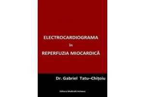 Electrocardiograma in reperfuzia miocardica